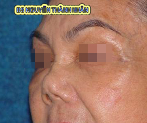 Ca 1: Trước khi phẫu thuật mũi