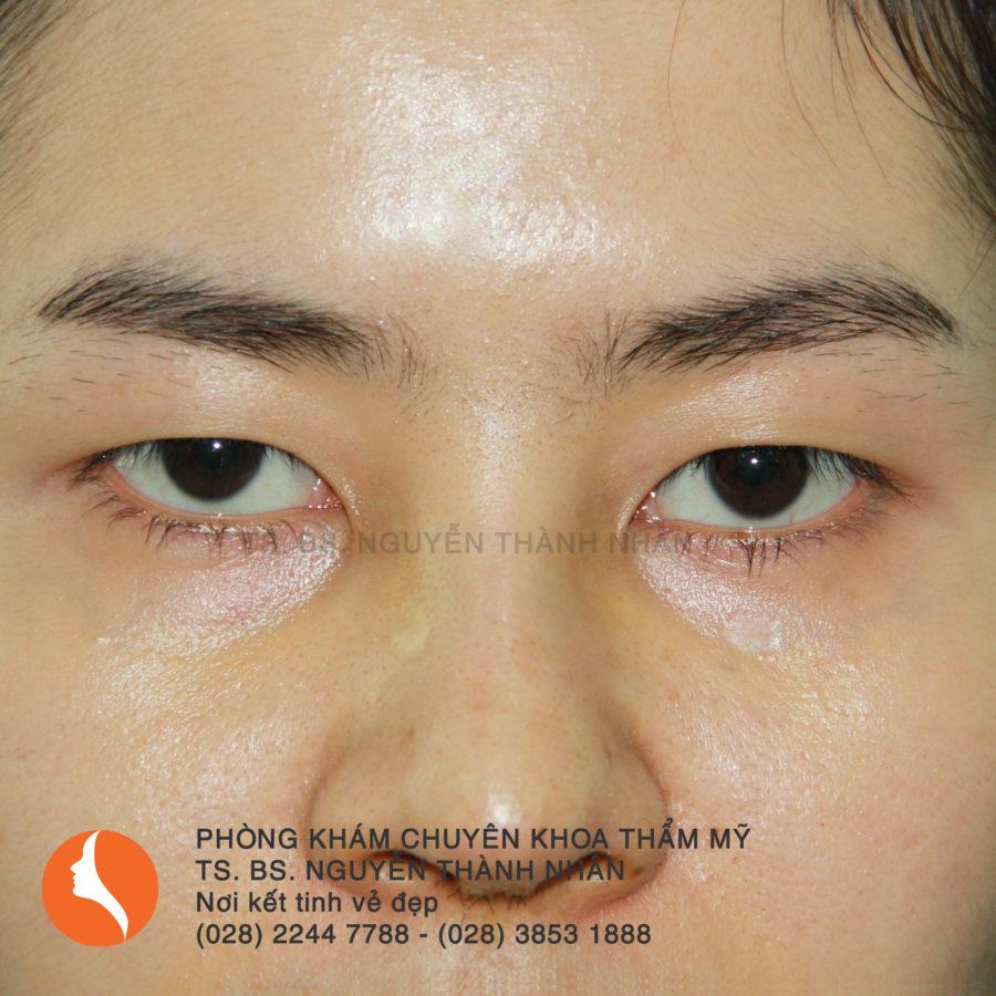 Ca 2: Trước khi phẫu thuật mắt