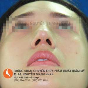 Ca 2: Sau khi phẫu thuật mũi