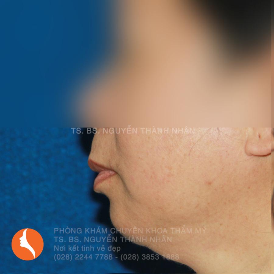 Ca 4: Trước khi phẫu thuật cằm