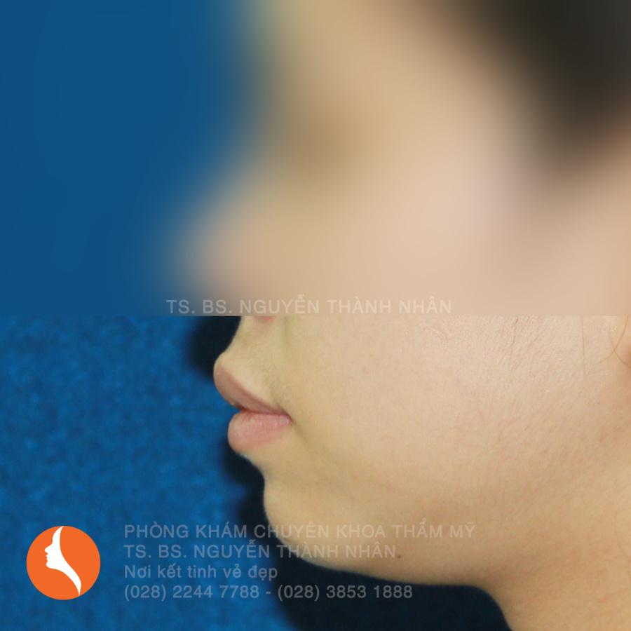 Ca 6: Trước khi phẫu thuật cằm