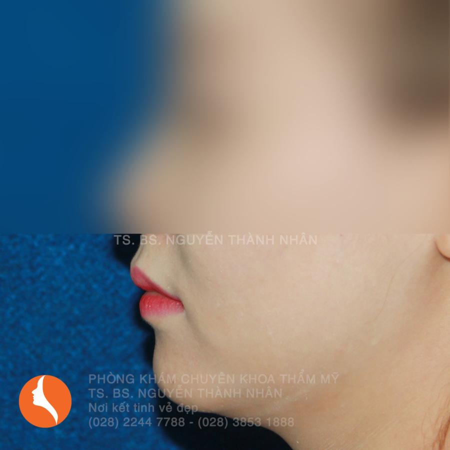 Ca 1: Trước khi phẫu thuật cằm