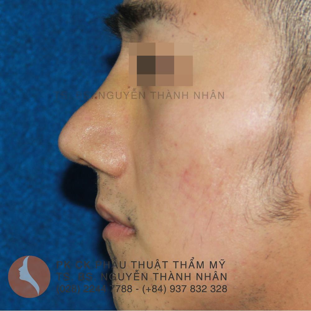 Ca 3: Sau khi phẫu thuật mũi