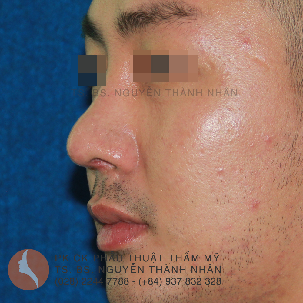 Ca 5: Sau khi phẫu thuật mũi