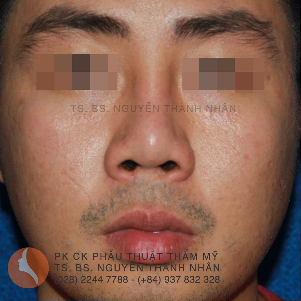 Ca 5: Trước khi phẫu thuật mũi