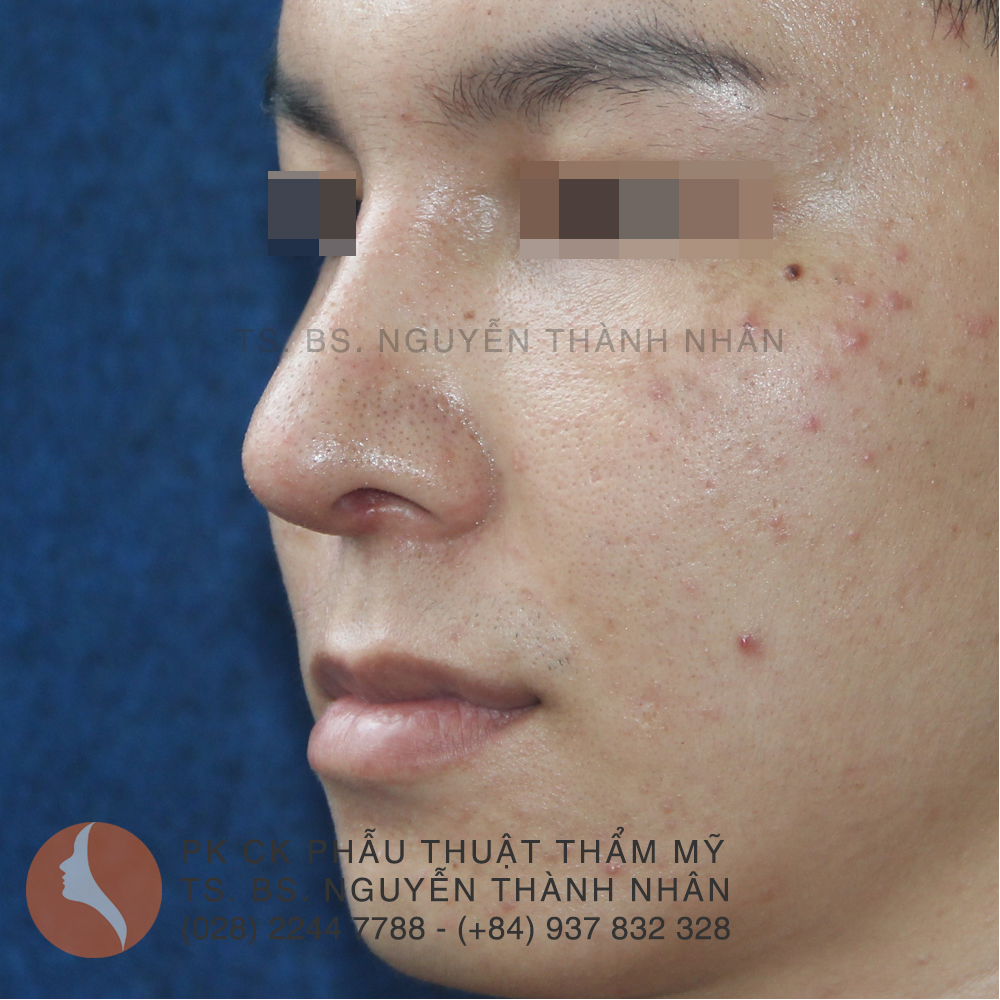 Ca 6: Sau khi phẫu thuật mũi