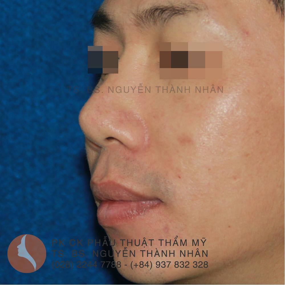 Ca 7: Trước khi phẫu thuật mũi