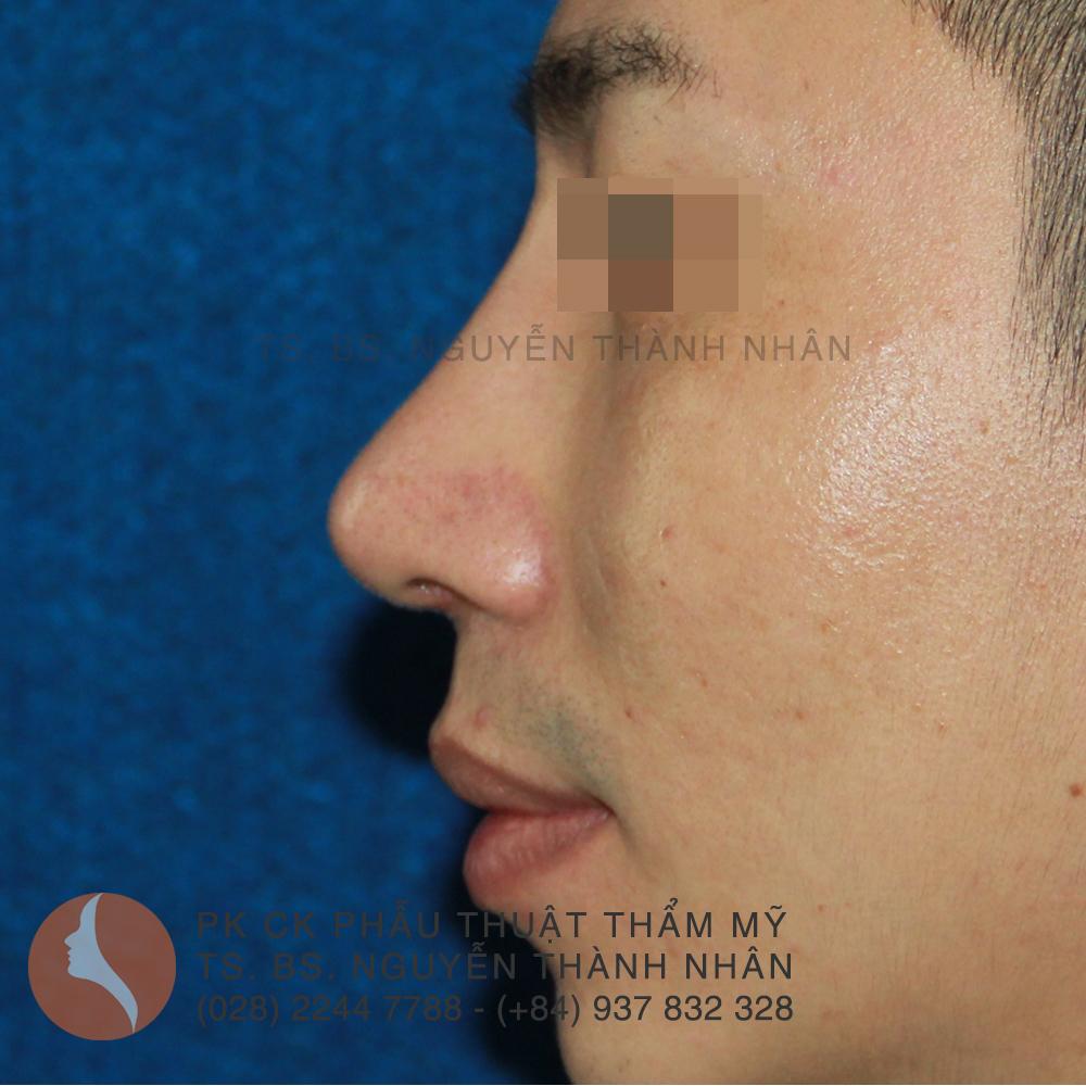 Ca 7: Sau khi phẫu thuật mũi