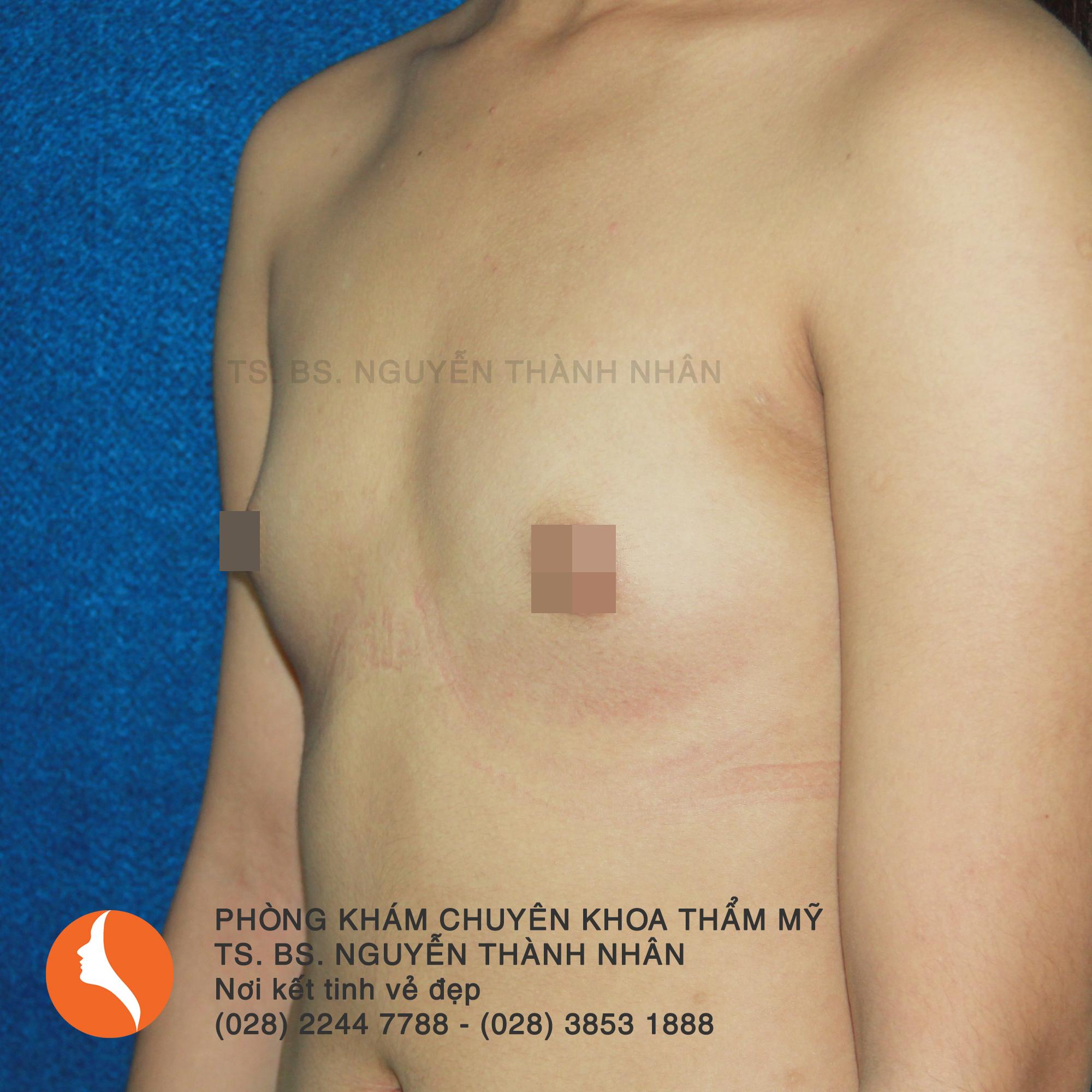 Ca 3: Trước phẫu thuật nâng ngực
