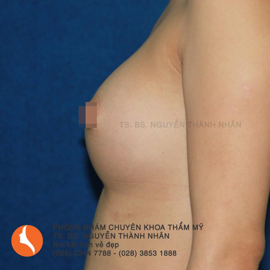 Ca 8: Sau phẫu thuật nâng ngực