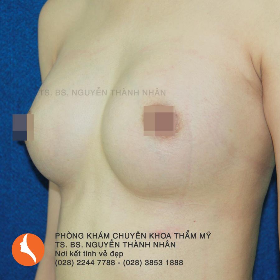Ca 1: Sau phẫu thuật nâng ngực