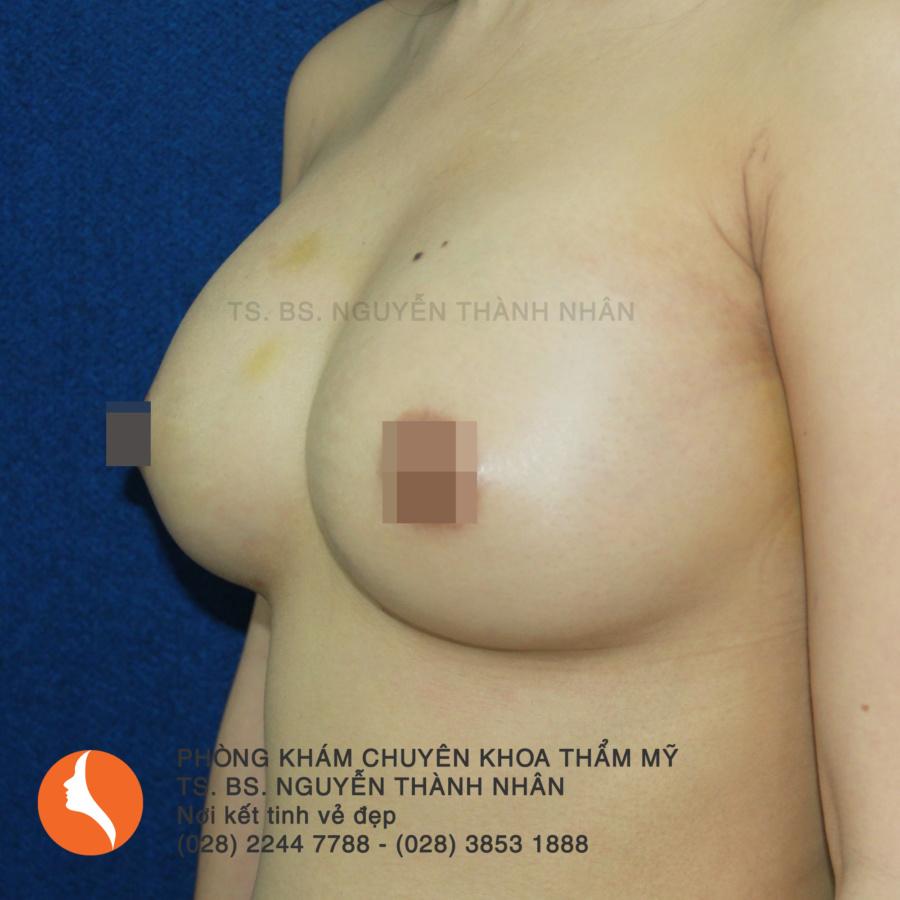 Ca 6: Sau phẫu thuật nâng ngực