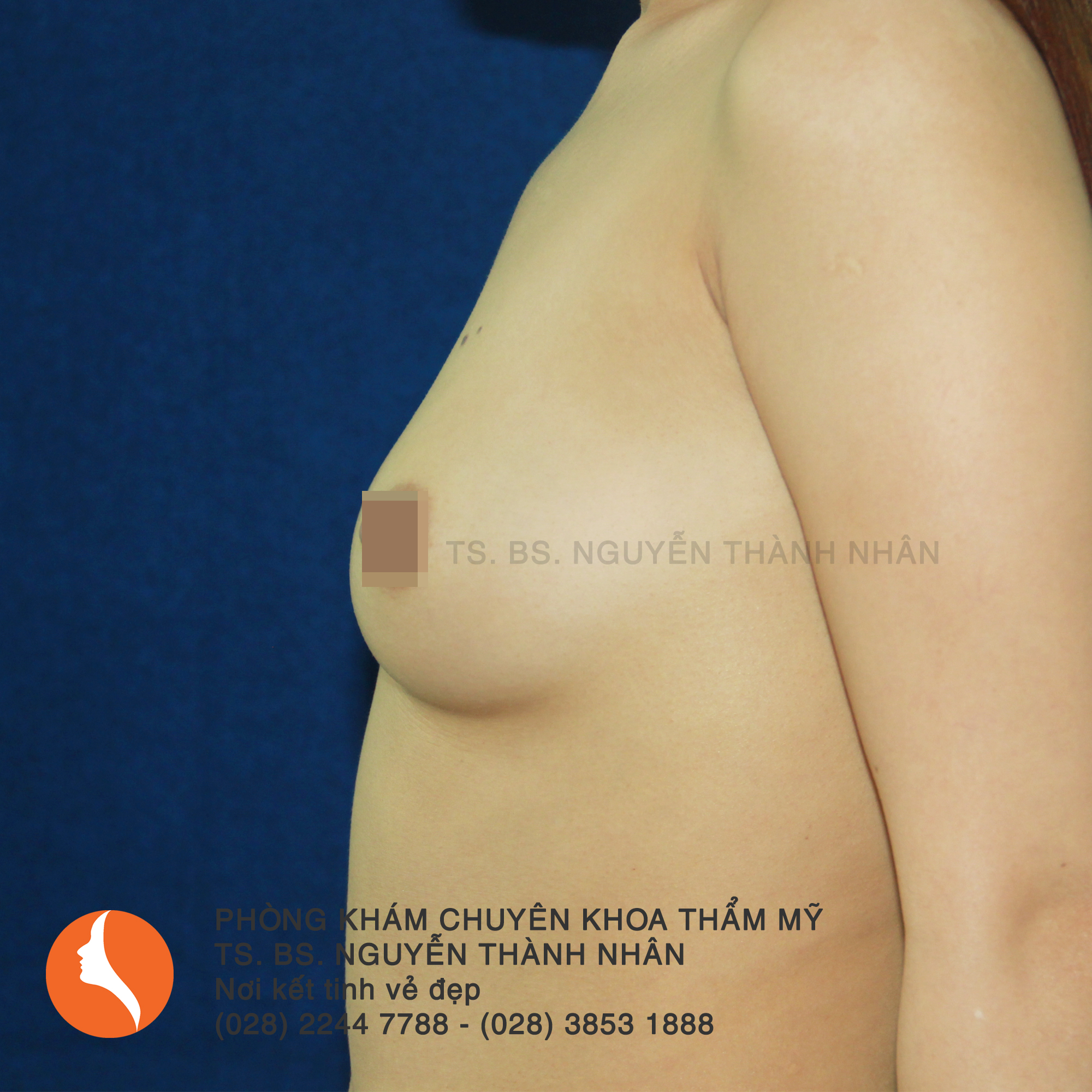 Ca 6: Trước phẫu thuật nâng ngực