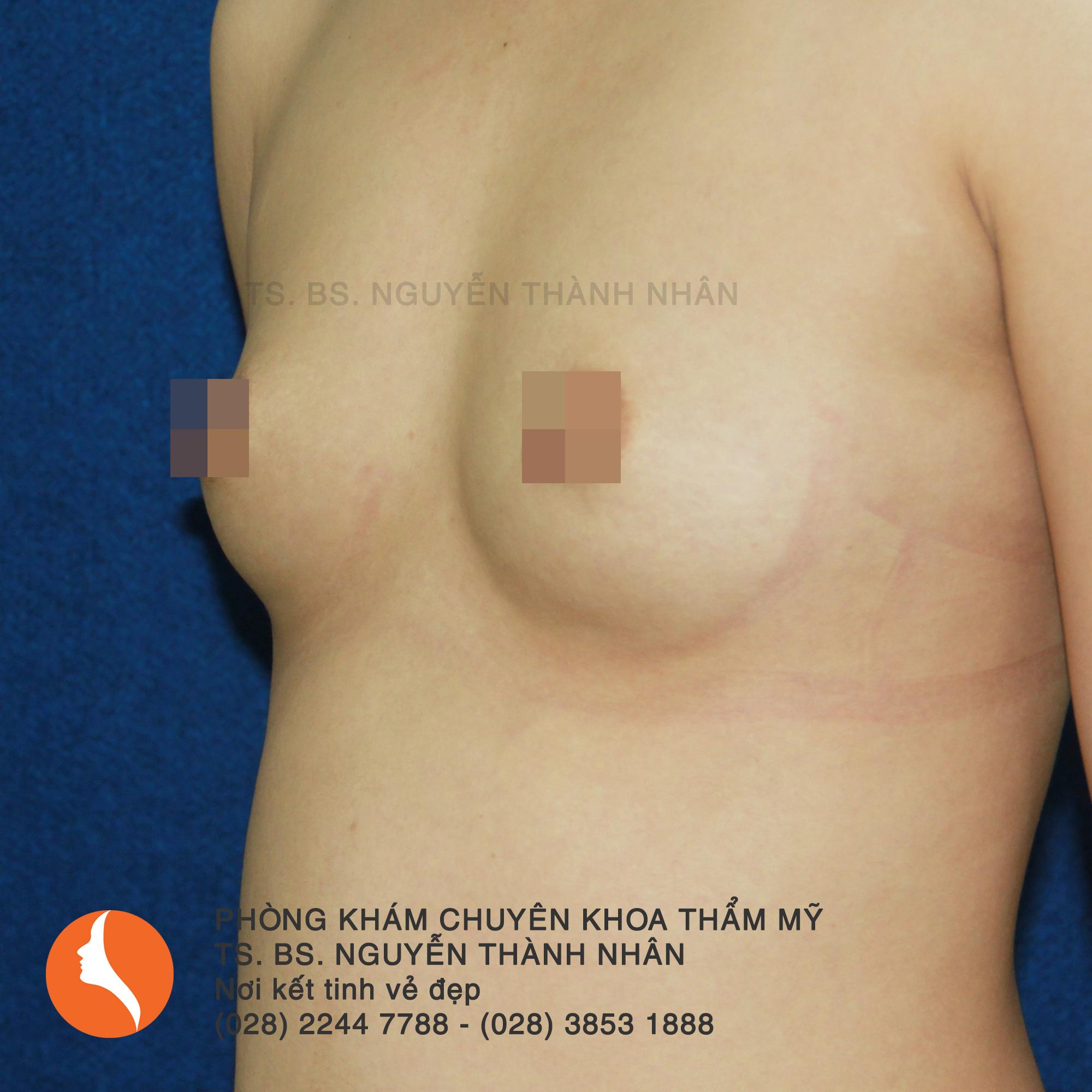 Ca 7: Trước phẫu thuật nâng ngực