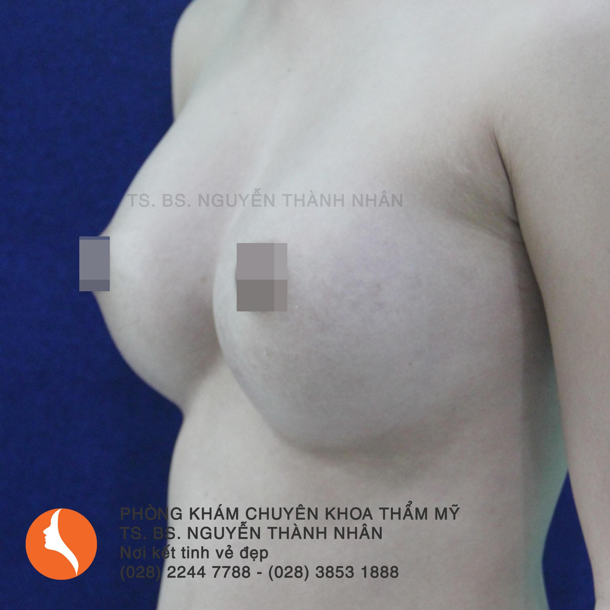 Ca 7: Sau phẫu thuật nâng ngực
