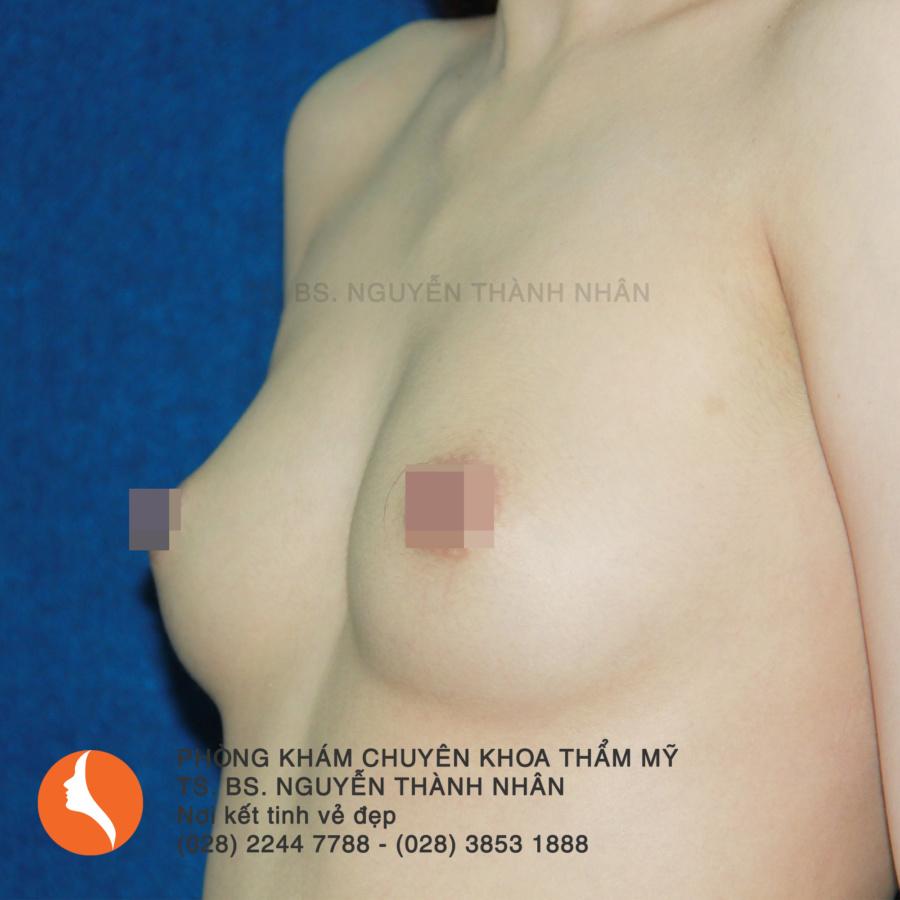 Ca 9: Trước phẫu thuật nâng ngực