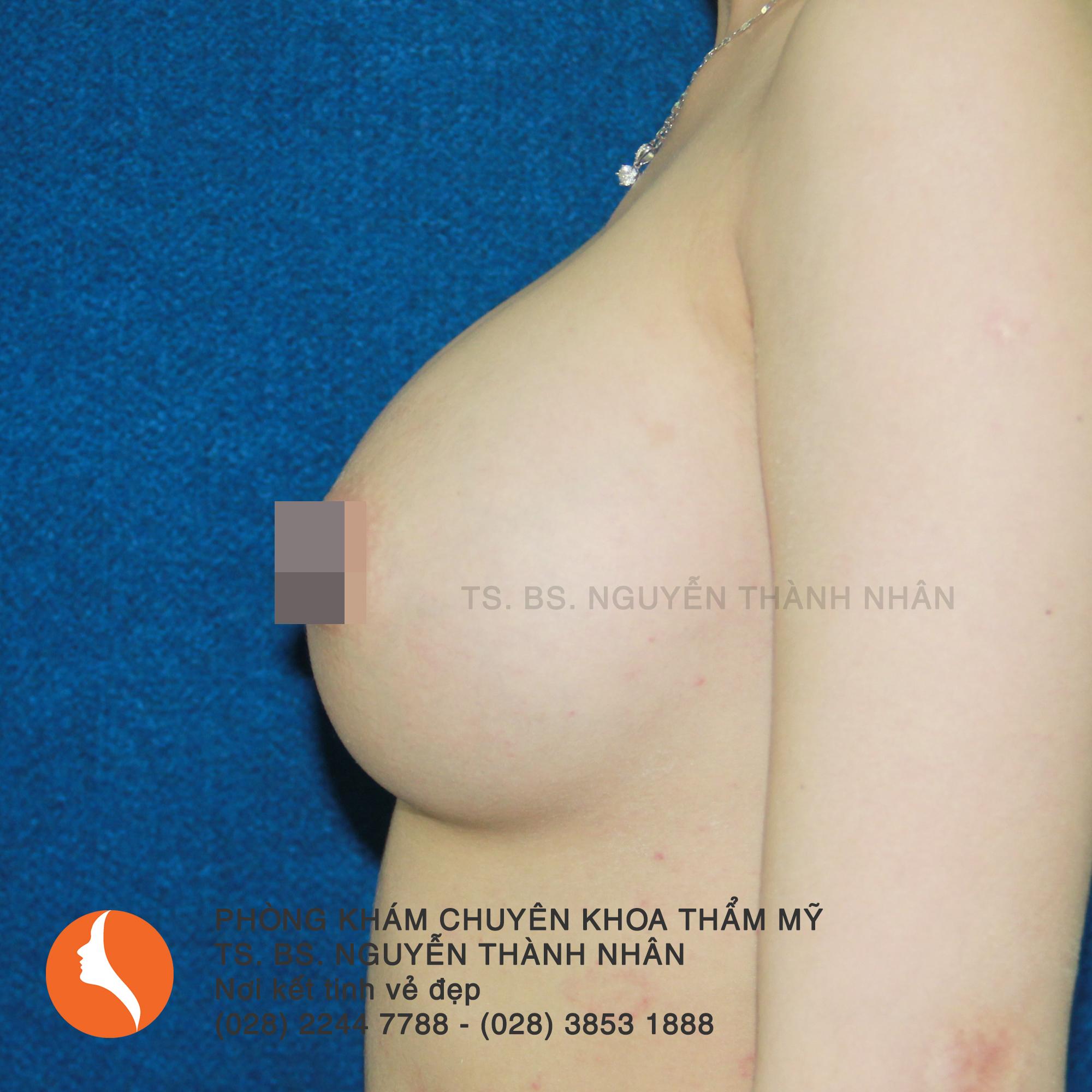 Ca 9: Sau phẫu thuật nâng ngực